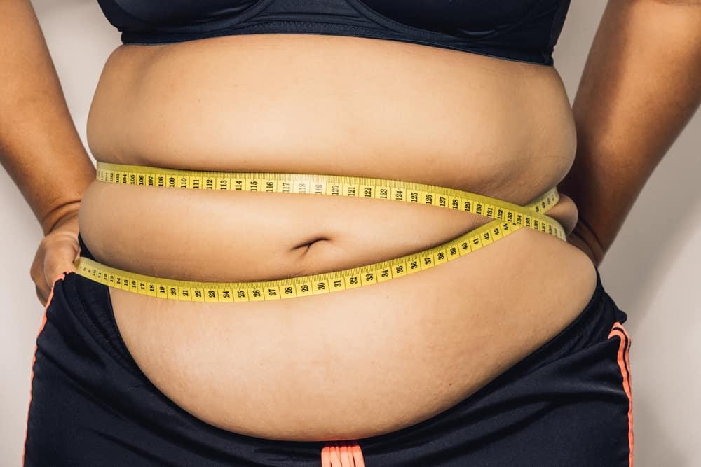 gangguan kesehatan obesitas