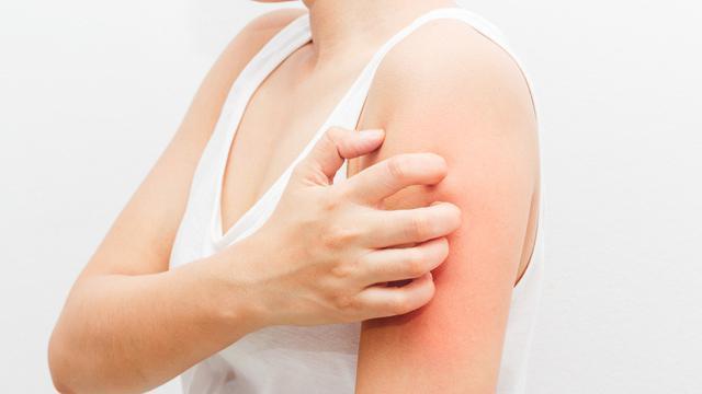 Jenis Obat Oles Untuk Mengatasi Kulit Gatal